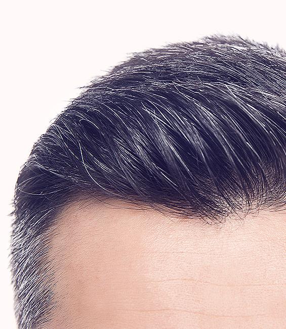 Medi Hair System