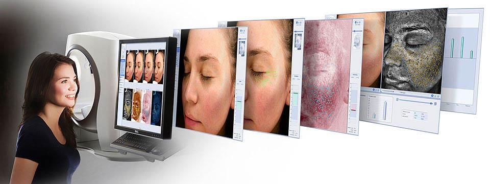 3D Skin Analysis